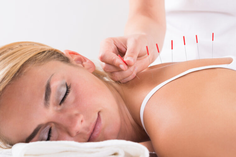 https://integrativewellnesscenter.us/wp-content/uploads/2018/09/hand-performing-acupuncture-therapy-on-customers-back-76666793-750x500.jpg